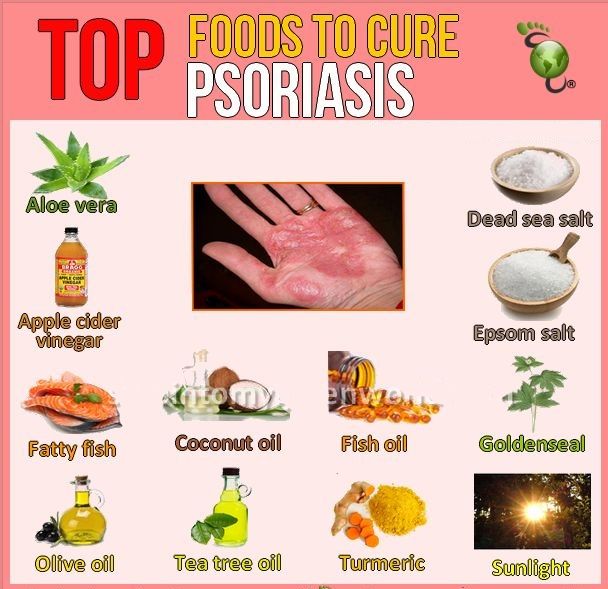 top foods to cure psoriasis