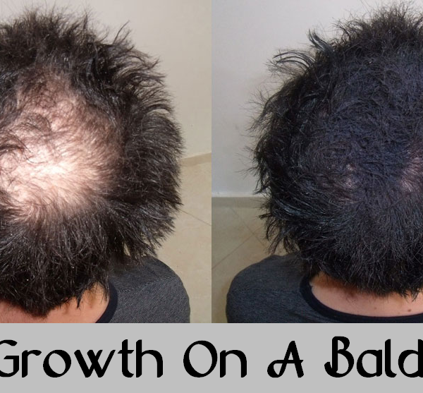 hair growth on a bald spot
