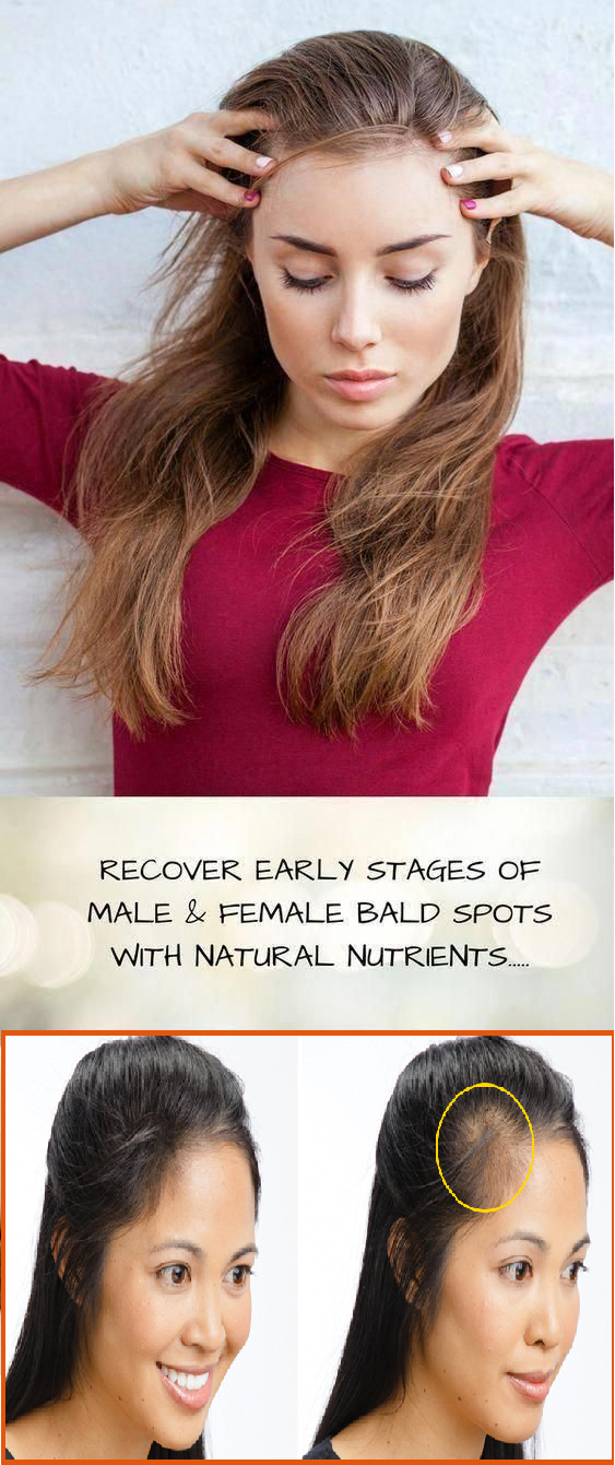 recover from bald spots with natural nutrients