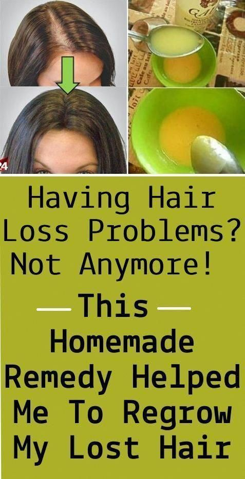 homemade remedy for hair growth