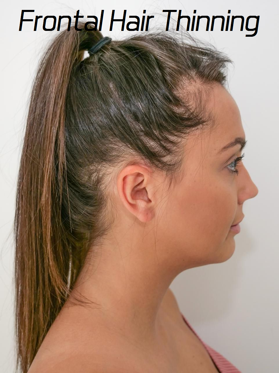 frontal hair thinning