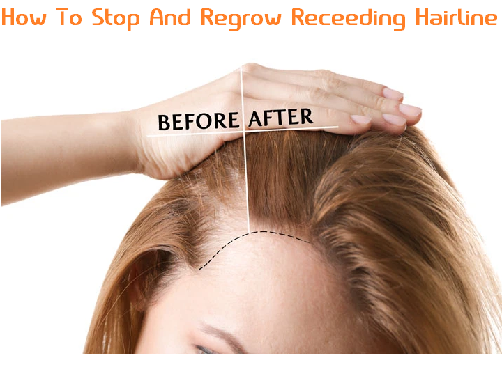 how to stop and regrow receding hairline