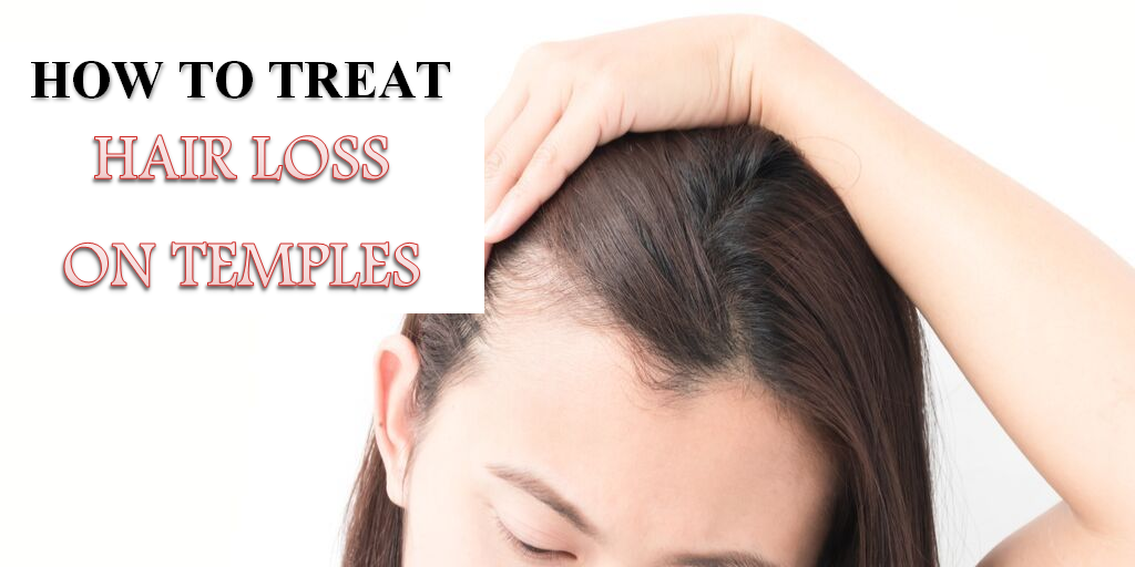 how to treat hair loss on temples