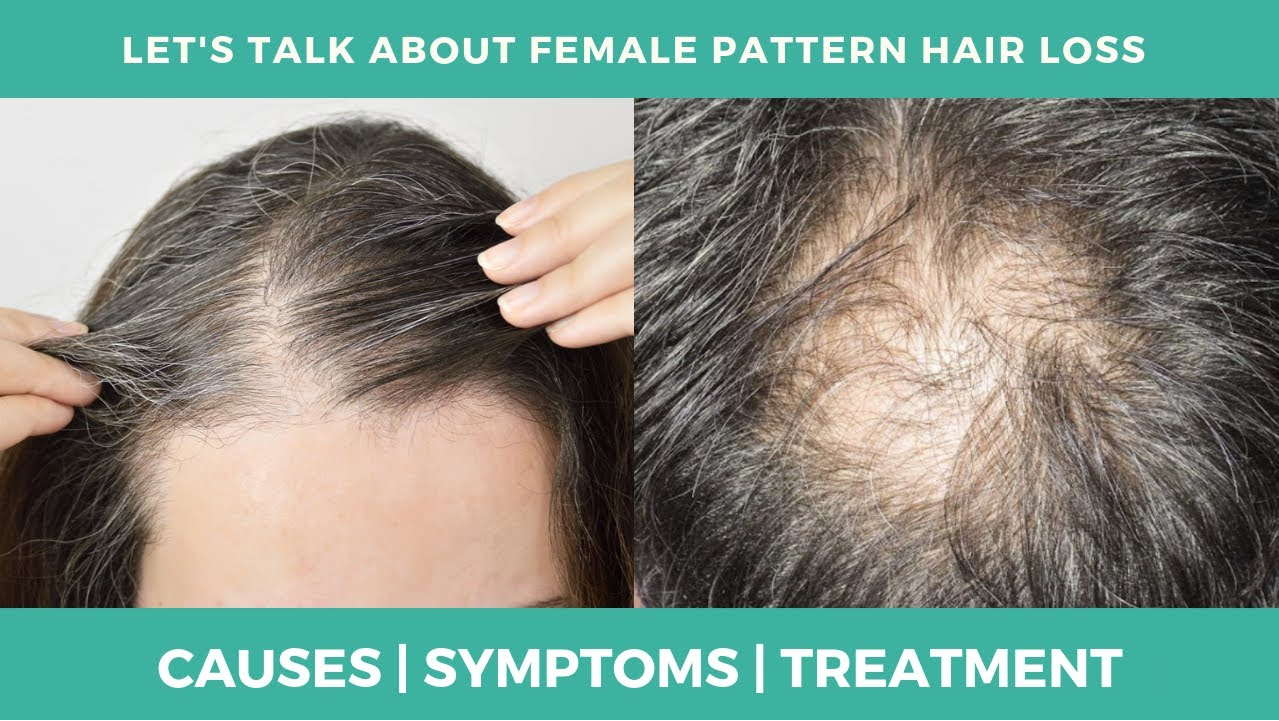 let's talk about female pattern hair loss